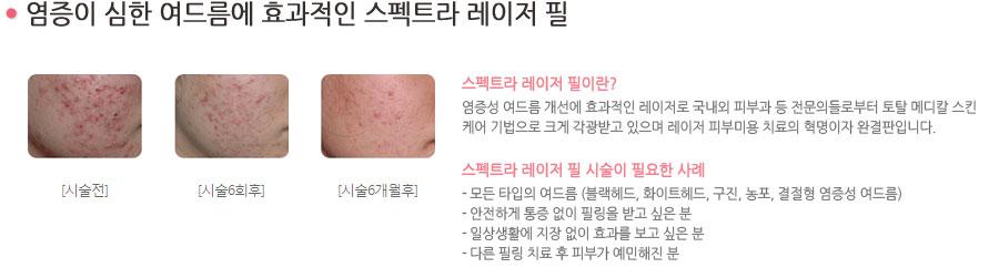 염증이 심한 여드름에 효과적인 스펙트라 레이저 필